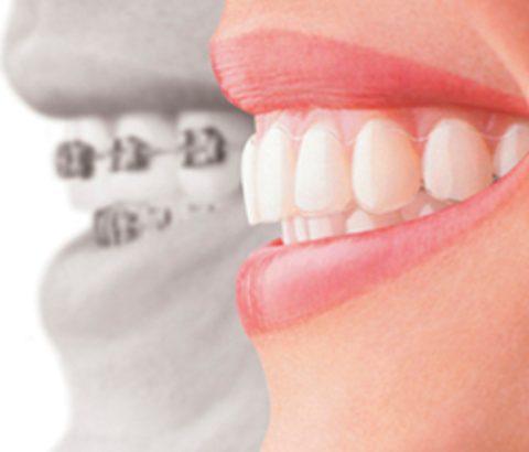 歯痛が起きてしまう原因とは?日頃からのメンテナンスが大事!