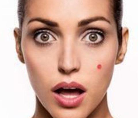 毛穴詰まりが原因のニキビ、脂腺性毛包を治すには