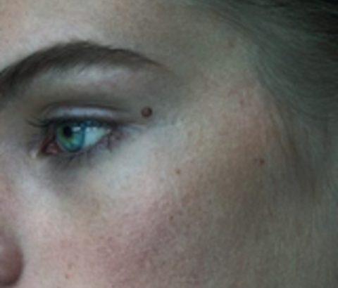 頬ニキビ、左側にできた原因はアレだったんです!頬ニキビをケアしてサラリとした素肌へ♡