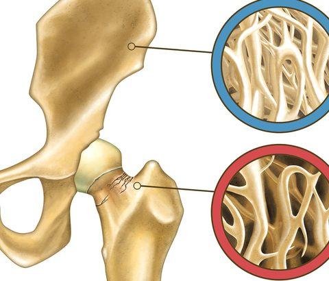60代以上は骨粗鬆症が悩み…生理が来なくなった後の骨ケアを考える